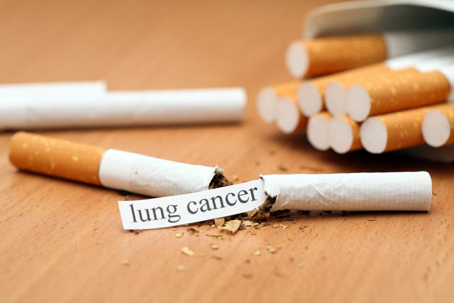 lung cancer shutterstock